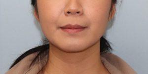 001 [Liposuction]