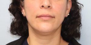 002 [Liposuction]
