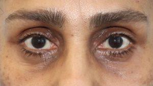 003 [Lower Blepharoplasty]