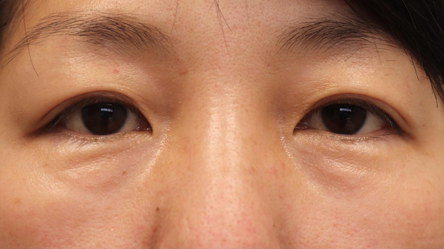 Lower Blepharoplasty before photo
