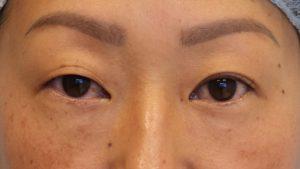 001 [Maibotsu / Double Eyelid Thread Technique]