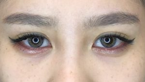 002 [Maibotsu / Double Eyelid Thread Technique]