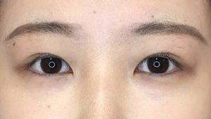 004 [Maibotsu / Double Eyelid Thread Technique]