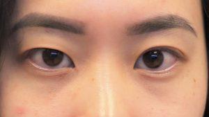 006 [Maibotsu / Double Eyelid Thread Technique]