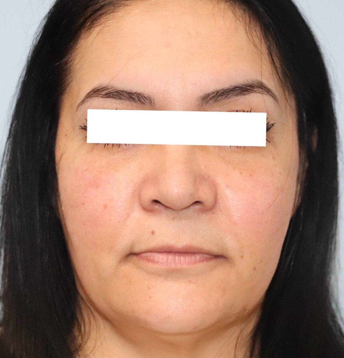 Lower Blepharoplasty after photo