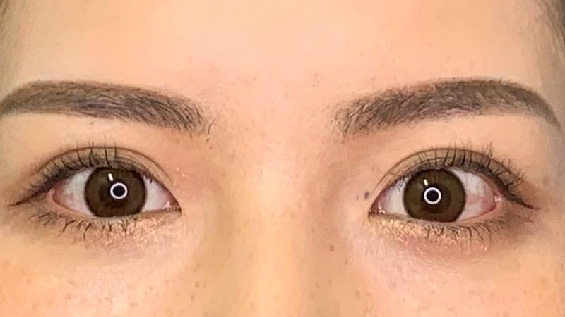 266605 [Maibotsu / Double Eyelid Thread Technique]