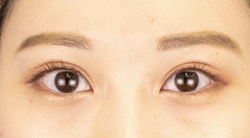 276585 [Maibotsu / Double Eyelid Thread Technique]