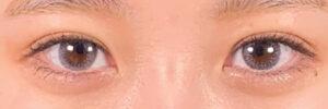 287403 [Maibotsu / Double Eyelid Thread Technique]