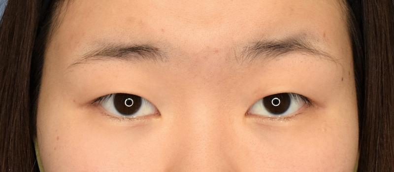 287601 [Maibotsu / Double Eyelid Thread Technique]